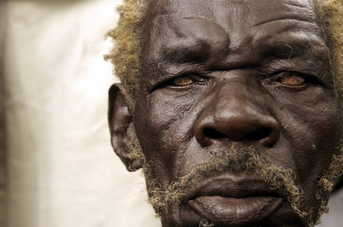 JAlden man with cataracts, Lira, Uganda